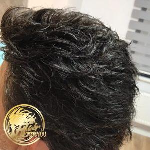 Protez saçın tercih edilmesinin sebepleri nelerdir?