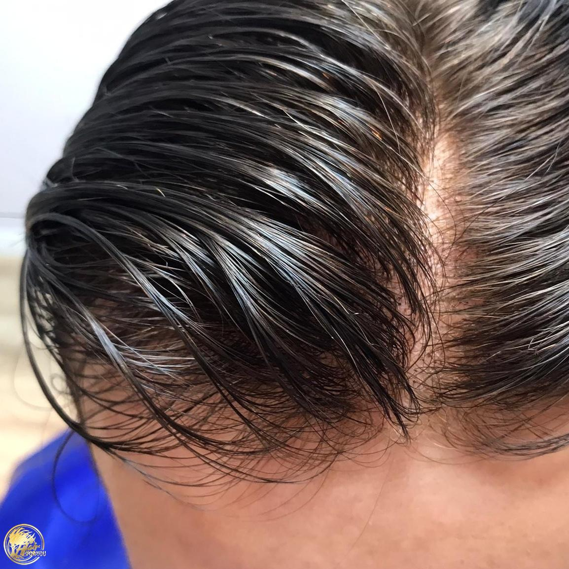 Protez saçın ömrü ne kadardır?
