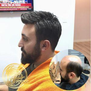 Protez saç nasıl uygulanır?